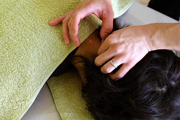 神経支配領域に鍼の響き治癒力を最大限に引き出す